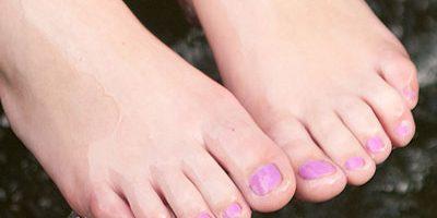 Hässliche Füße